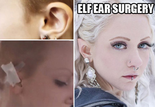 elf ear surgery on girl