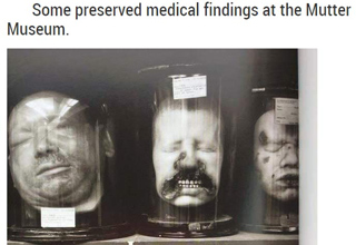 preserved medical heads from the mutter
