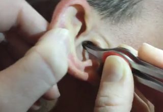 Woman Pulls HUGE Lump of Earwax From Man's Ear