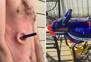 Modded Nerf Gun Ends In Pain