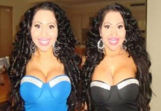 Twins Spent Over $190,000 To Look More Like Twins
