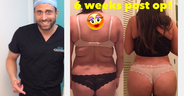 dr. miami and a picture of a butt surgery