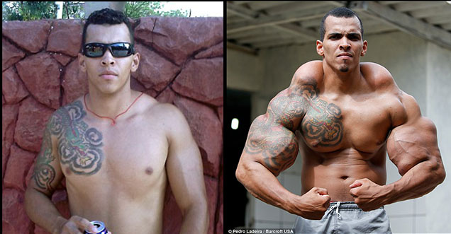 This Bodybuilder Injected Oil To Grow His Muscles And It Almost Killed Him