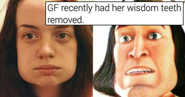 27 Random Images For Your Gander Globs - cover graphic of GF who had wisdom teeth pulled and now has real flat jaw line like a cartoon character.