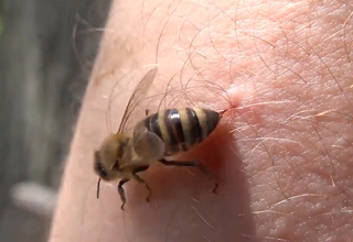 bee stinging a white person's skin