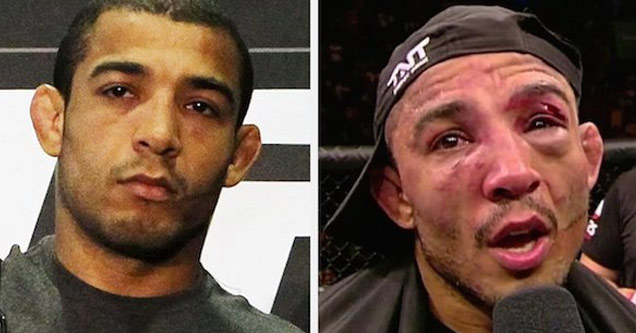 mma fighter before and after a fight