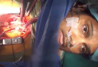 woman wakes up during open heart surgery
