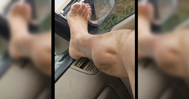 Guy Has An INSANE Leg Cramp That Would Kill A Lesser Man