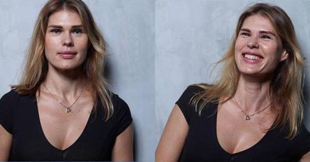 22 Woman Are Photographed Before, During and After
