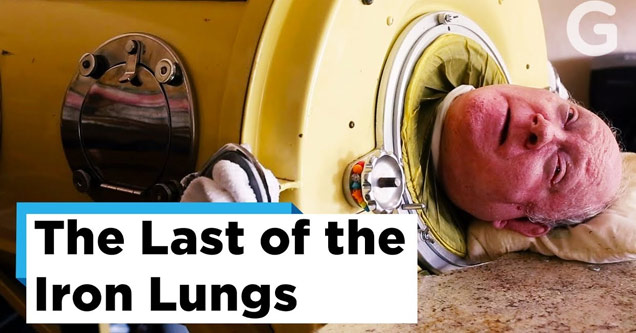 an old man with polio lives in an iron lung