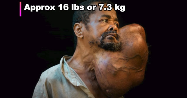 African Man Has 16 Pound Tumor Removed From Face After 30 years