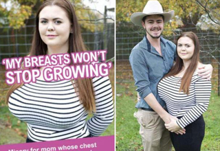 Woman's breasts won't stop growing, husband seems chill