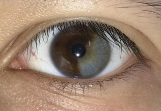 eye is 1/3 gray