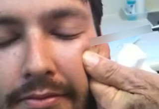 a man with black hair and a goatee is getting a surgical pin removed from his cheek