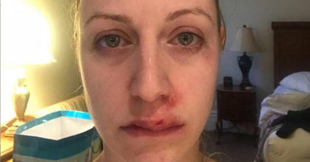 woman injured from iron deficient drunkenness