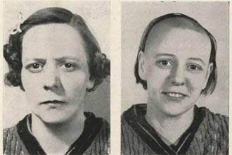 A woman before and after a lobotomy,