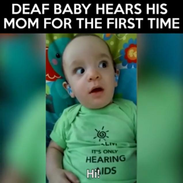 BABY HEARS MOTHER SPEAK FOR THE FIRST TIME Amazing