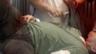 Emergency Tracheotomy view on ebaumsworld.com tube online.
