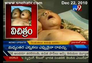Two-Headed Baby Boy Born In India!