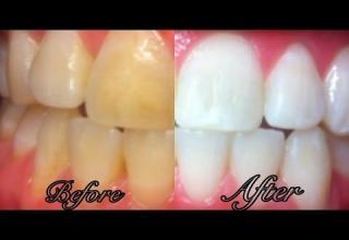Woodbridge Dentistry Teeth Whitening In Irvine Video Ebaum S World