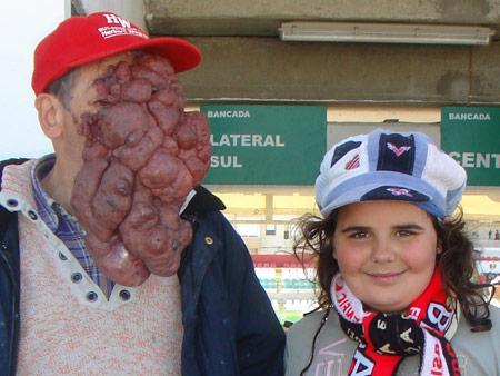 Giant Tumors Gallery Ebaum S World
