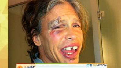 phot of steven tyler after he collapsed in a shower in Paraguay prob was all banged up on drugs but claims it was food poising