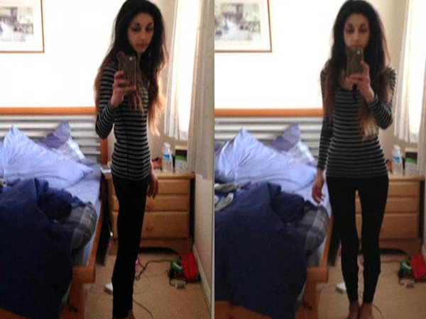 Anorexic gallery pic 48