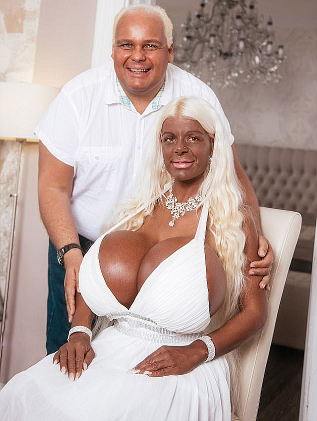 White Woman Uses Tanning Injections To Make Herself Look -7887