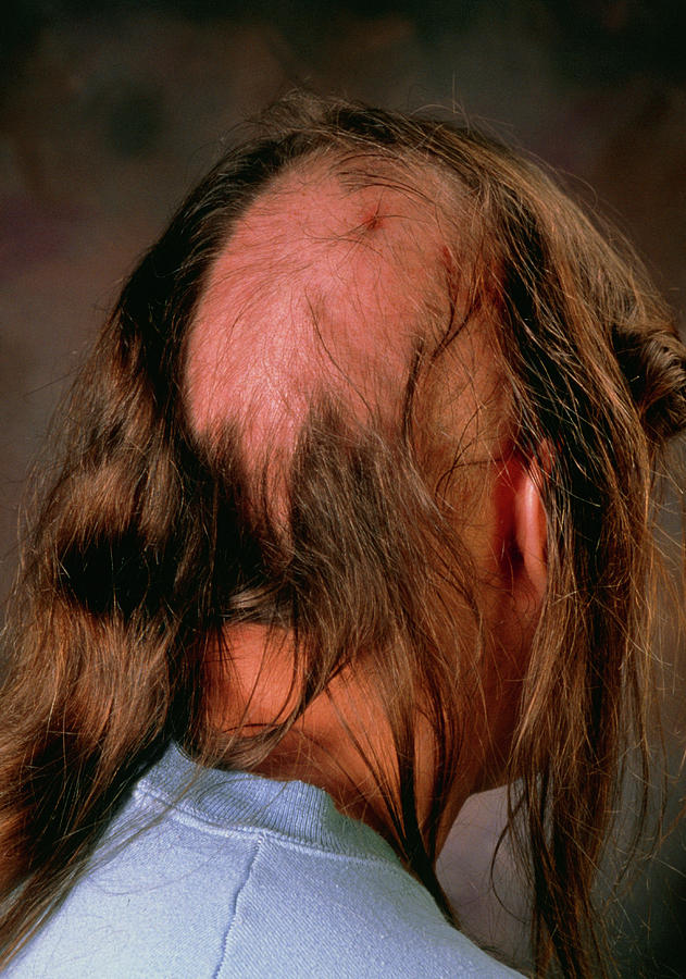 Now the maximum persons are like this, especially men are facing this problem of hair fall or no hair growth. But I have a solution to this, to know the solution go through this link    https://bit.ly/3xizLsa