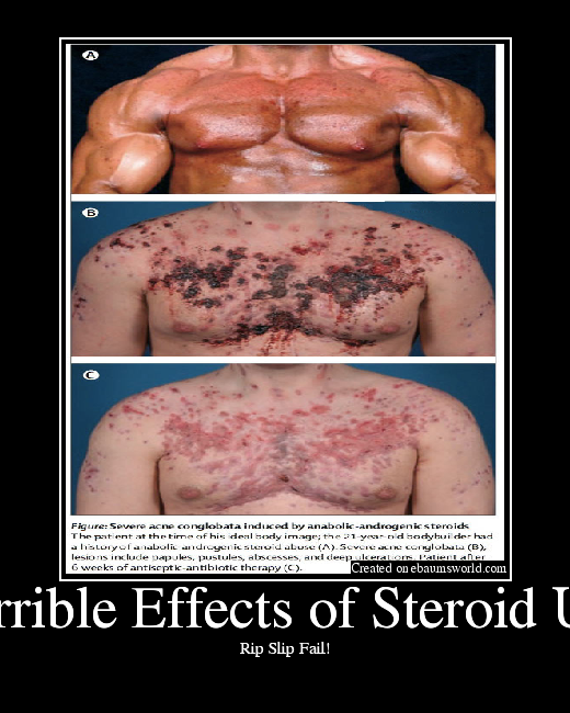 Steroids Overview