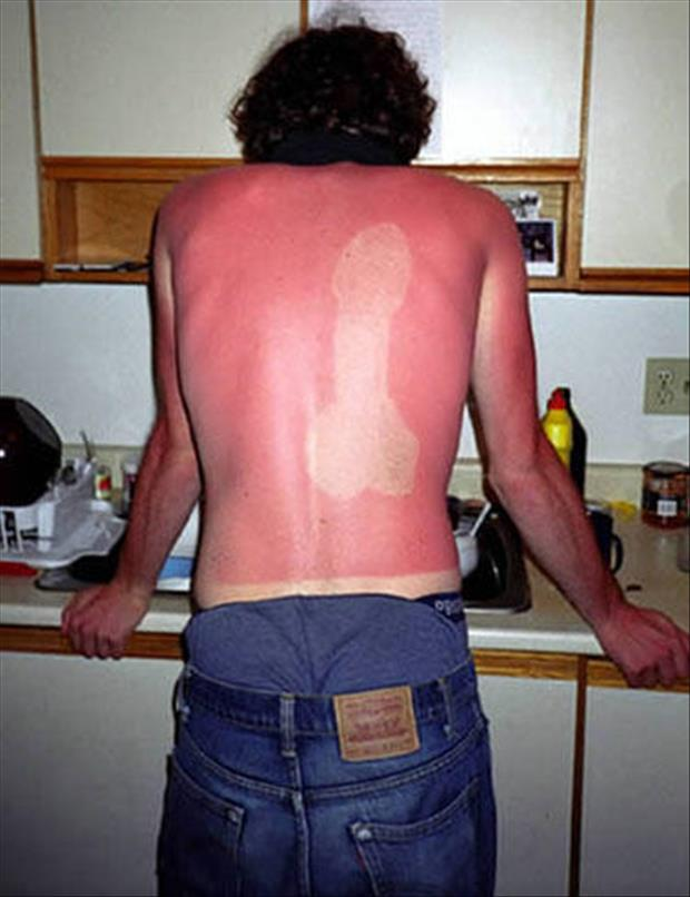 83360742 - Collection of funny sunburn photos