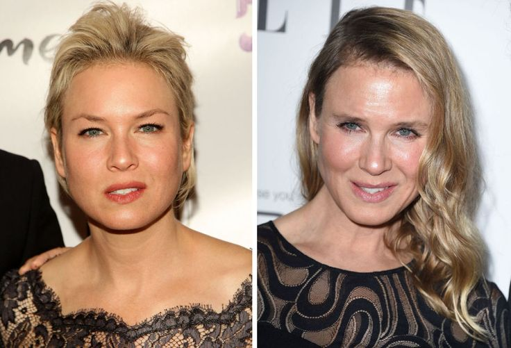 21 Celebrities With Botched Plastic Surgery Eww Gallery