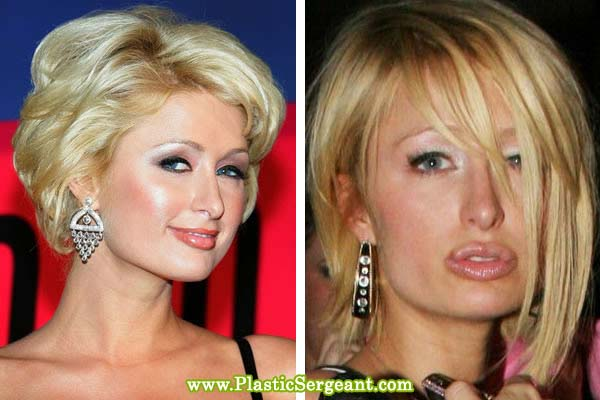 Celebrity Nose Job Pictures - Photos of Stars Before and ...