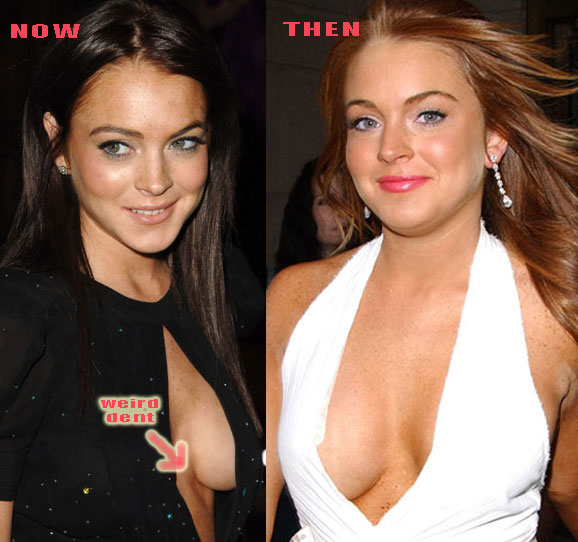 Lindsay Lohan Fake Tits - Picture  Ebaums World-9784