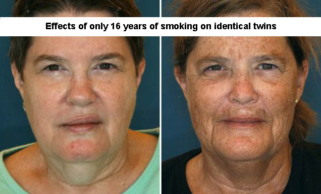 collection of interesting and cool pictures | a photo of identical twins and the effects of smoking
