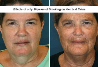 a photo of identical twins and the effects of smoking