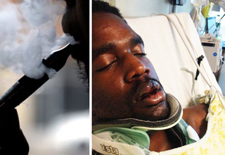A man was left in critical condition after his e-cigarette exploded in his face.