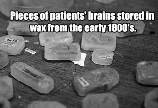 Take a creepy medical tour of the past.