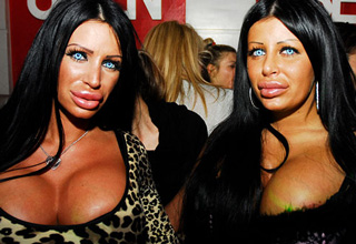 Plastic surgery that has gone very wrong.