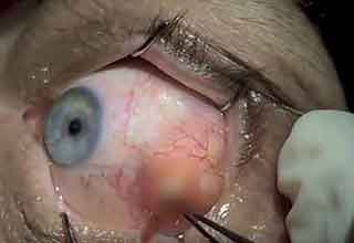 **Warning: Not For The Squeamish** Imagine how good this guy is going to feel after getting all this junk out of his eye.