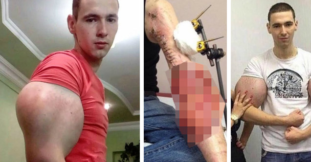 The Synthol Kid Was Forced To Have His Fake Muscles Drained