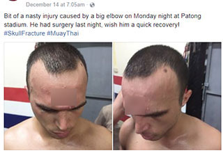 This fighter took an elbow to the head and it fractured his skull.