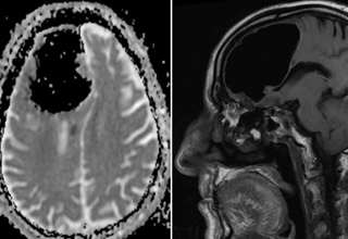 An 84-year-old man's entire left side was weakened by what turned out to be a 9 cm pocket of air in his brain.