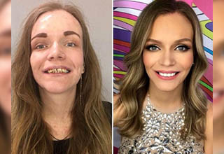 Make-up artists are magicians... They pulled some dark magic and made these women go from 'throw up' to 'glow up'. It's pretty crazy what they can pull off, and these women are a testament to that facts. Here are 23 times a make-up artist pulled off a miracle.