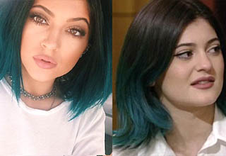 Kylie Jenner after. Kylie Jenner before.