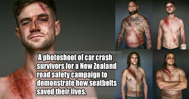 photos of several men with bruises and cuts on ther bodies from car crashes where seatbelts saved their lives