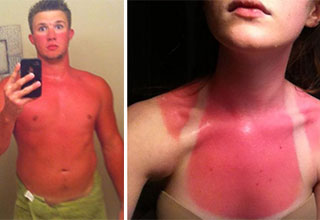 You better lotion up because it's sunburn season.
