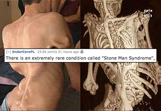 You mean to tell me, that there is something called Stone Man disease where people turn into human stones?
