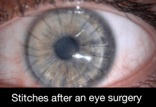 a photo of an eye with stitches after surgery