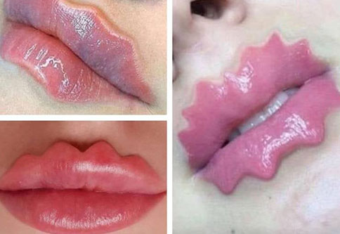 strange looking lip trend